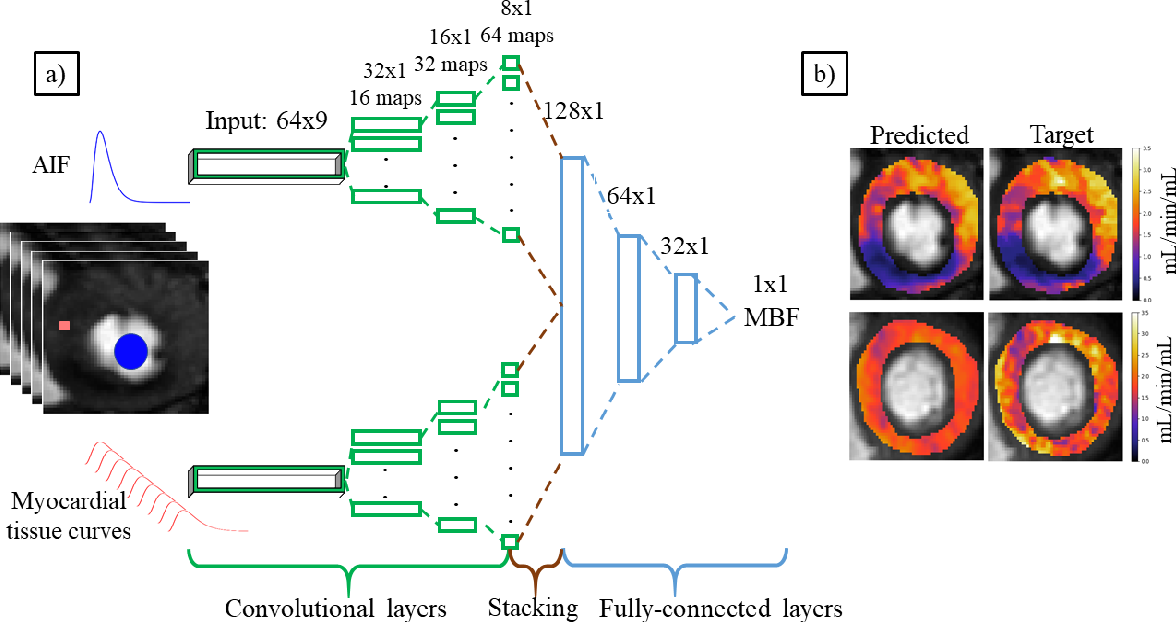 Figure 1 for Deep learning-based prediction of kinetic parameters from myocardial perfusion MRI