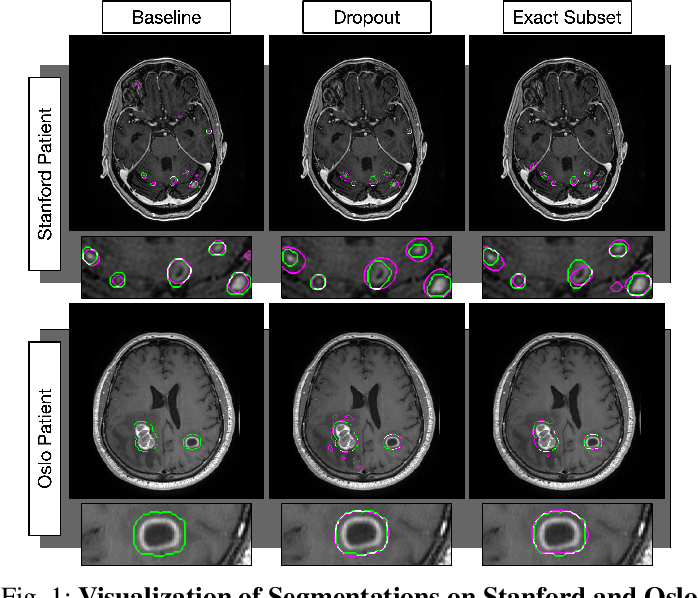 Figure 1 for MRI Pulse Sequence Integration for Deep-Learning Based Brain Metastasis Segmentation