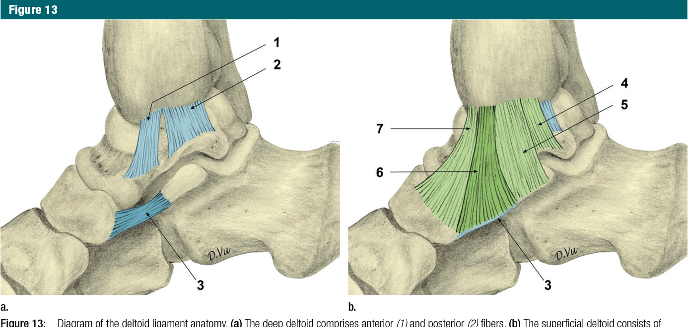 Imaging of Acute Capsuloligamentous Sports Injuries in the Ankle and ...