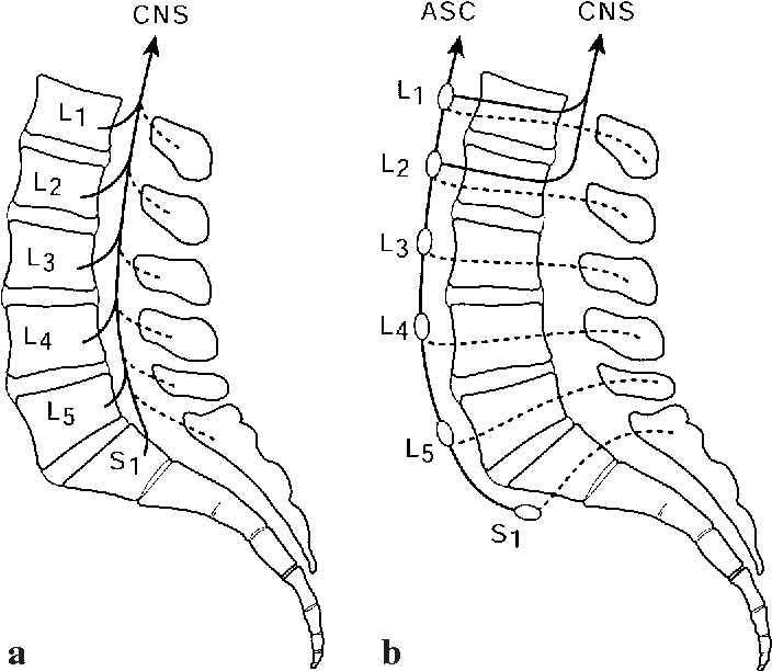 Figure 3 From The Anatomic And Physiologic Basis Of Local Referred